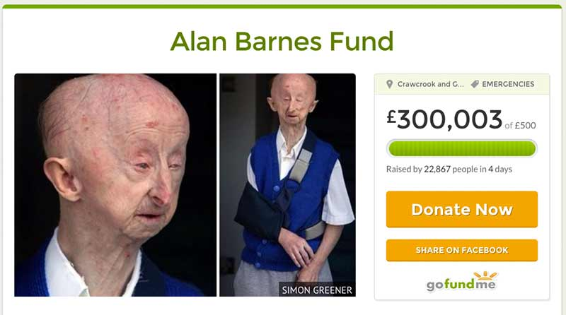 Alan Barnes Fund raises £300k in four days on GoFundMe.com