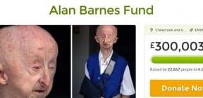 Alan Barnes Fund raises £300k in four days on GoFundMe.com